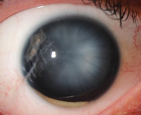 halo après cataracte